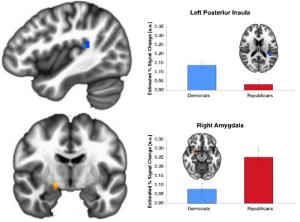 Republicans and Democrats differ in the neural mechanisms activated while performing a risk-taking task. Republicans more strongly activate their right amygdala, associated with orienting attention to external cues. Democrats have higher activity in their left posterior insula, associated with perceptions of internal physiological states. This activation also borders the temporal-parietal junction, and therefore may reflect a difference in internal physiological drive as well as the perception of the internal state and drive of others.